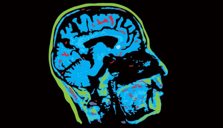 Brain_Sidebar_AC